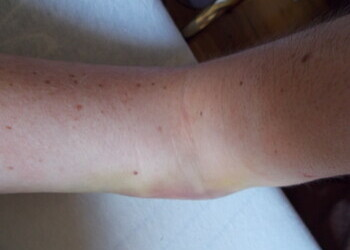 Arm is inflamed 2012-09-12