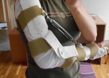 Custom made splint by Johanna Jacobson-Petrov to help with the contracture 2013-06-27
